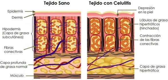 Como eliminar la celulitis, facil y efectivo 4